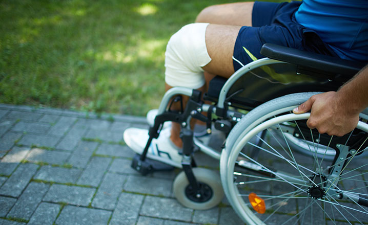 man with leg injury in wheel chair