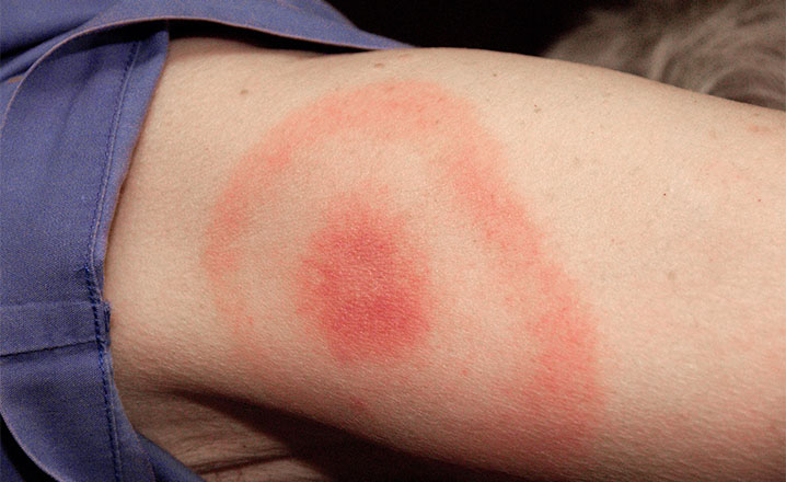 rash in Lyme disease